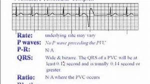 Popular Videos - Premature ventricular contraction - YouTube