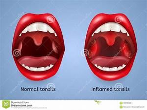 Tonsils Cartoons  Illustrations  U0026 Vector Stock Images