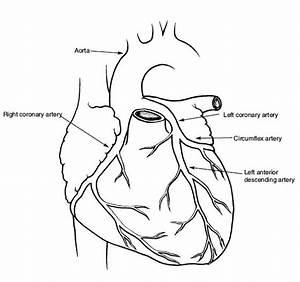 Cardiac Catheterization  Heart Cath  Angiography  Stents