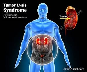 The 25  Best Tumor Lysis Syndrome Ideas On Pinterest
