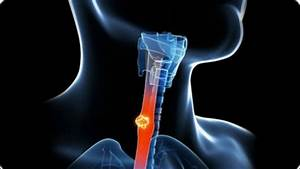 Symptoms And Treatment Of Esophageal Cancer