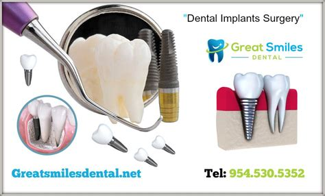 Affordable Dental Implants Fort Lauderdale  Greatsmilesdental. Safety Management Programs Pc Remote Support. Cheap Flights Los Angeles To Toronto Canada. Gartner Database Security Jeep Liberty Images. Us Airways Travel Insurance On Time Plumbing. Security Companies In Indianapolis. High Finance Restaurant Albuquerque. Network Configuration Management Tools. Long Term Travel Insurance Santa Fe Plumbing