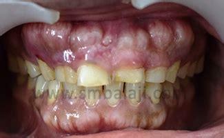 buccal exostosis tori bony enlargement correction