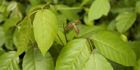 rid  poison ivy rash  poison ivy remedies
