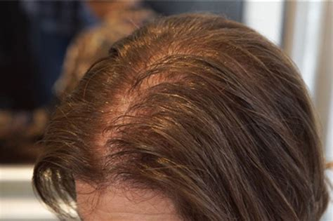 age women lose  hair   treatments