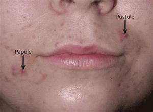 Figure  Acne  Papules And Pustules