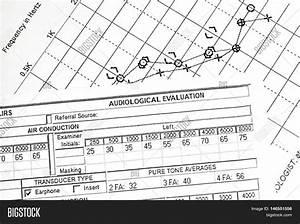 Hearing Test Chart Image Photo Free Trial Bigstock
