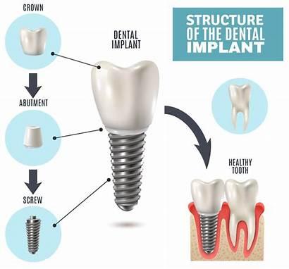Dental Implants Imp Dentistry Benefits