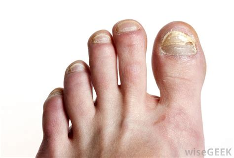 Receding Nail Bed by How Do I Use For Toenail Fungus With Pictures