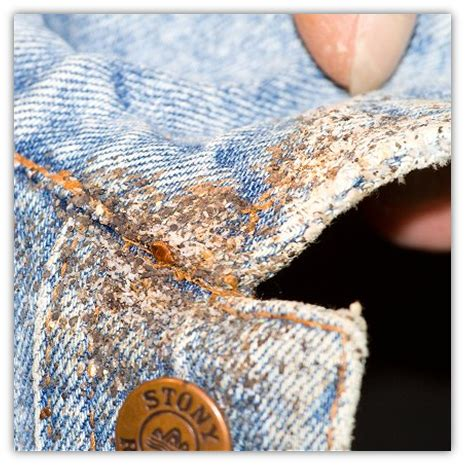bed bug eggs  clothing