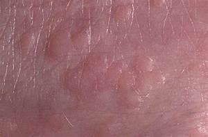 Лечение папиллом у мужчин какими препаратами и отзывы