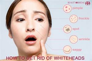 How to get rid of whiteheads on face, Nose by home ...