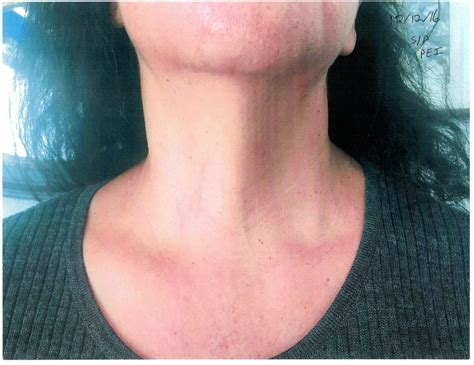 Not All Cysts In Or Near The Thyroid Are Thyroid Cysts