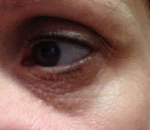 Syringoma or Milia Laser Treatment? (photo) Doctor Answers ...
