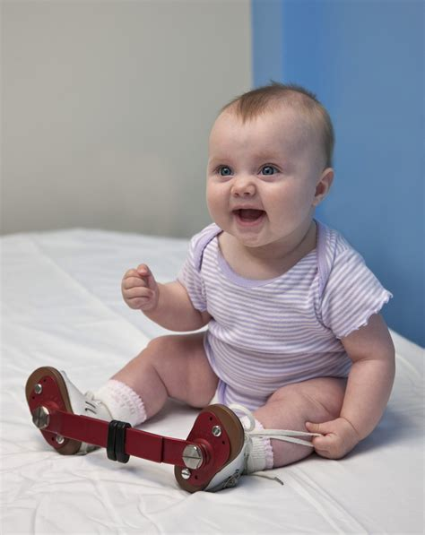 It's when a baby's foot turns inward so. Clubfoot (Talipes Equinovarus) - Campbell Clinic Orthopaedics