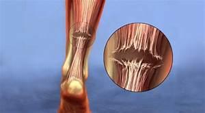 Achilles Tendon Tear - Symptoms And Treatment