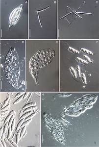 Morphology On Natural Substrates  Asci And Ascospores  A U2013c
