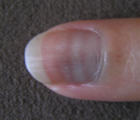 White spots on nails: Causes, prevention, and treatment