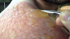 Massive blister being popped! - YouTube