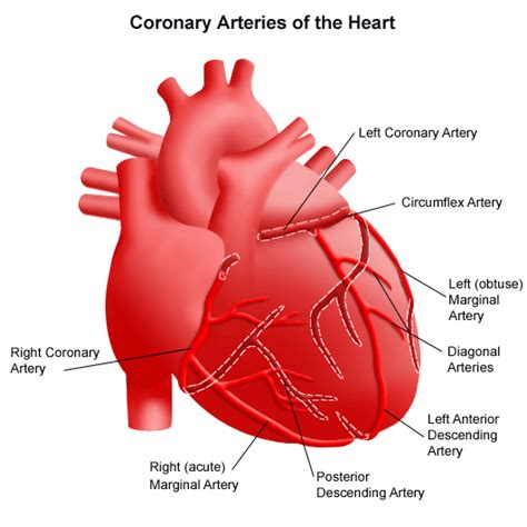 Coronary Artery Disease  Signs, Symptoms, Causes, Tests. Tangled Signs. Green Check Mark Signs Of Stroke. Creative Wall Signs. Plant Signs. Delay Signs. Mini Stroke Signs. Incident Signs. Warning Signs