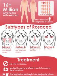 What Is Acne Rosacea