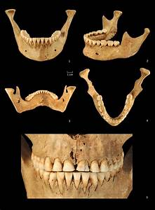 Different Views Of The Mandible And Frontal View Of The