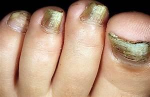 Грибок ногтей ног.лечение медикаментами