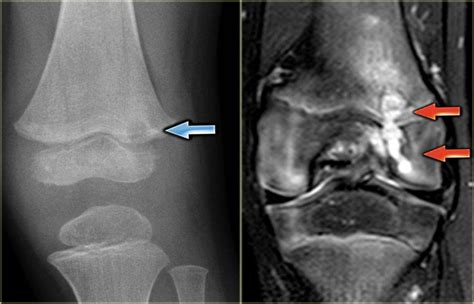 osteomyelitis ray subacute patients