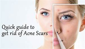 Pin On Hormonal Acne Solutions