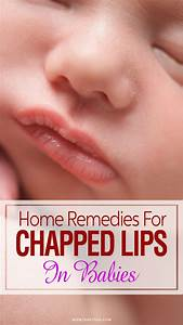 Baby 39 S Chapped Lips Causes Home Remedies And Prevention