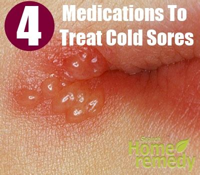 4 Drugs And Medications To Treat Cold Sores  How To Treat. Dentist In Riverdale Ga On Line Business Card. Aim Reusable Packaging 30 Birthday Invitation. Hr Certification Online Programs. Virgin Mobile Usa Reviews Sign Pdf On Iphone. Environmental Testing Chambers. Irs Fresh Start Initiative Washer Belt Repair. Online Vet Tech Colleges Dr Faidi Stockton Ca. How To Become An Adoptive Parent