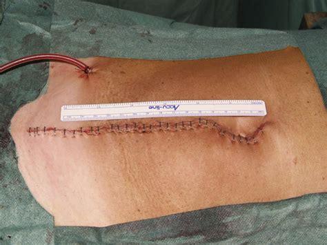 Abdominal incision after ORH. | Download Scientific Diagram