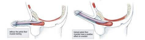 kegel exercises strengthen the pelvic floor muscles