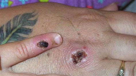 Two cases of monkeypox virus found in Wales - UK News