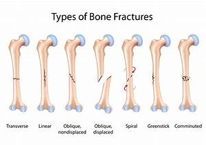 Fractures From Injury To Return - 411