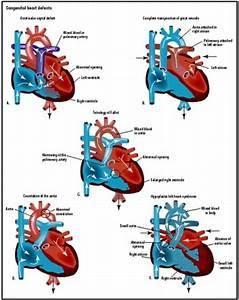 Congenital Heart Disease   Health Dictionary