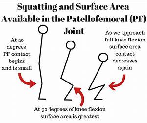 Why Do I Have Knee Pain  Complete Guide To Patellofemoral