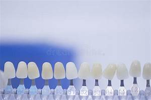 Dental Implant Stock Illustration  Illustration Of