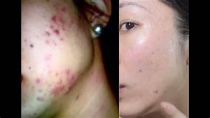 How To Get Rid Of Acne Scars  Banish Com
