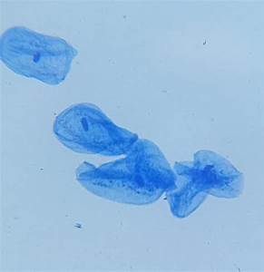 File:Human Cheek Cells (Methylene Blue Stain).jpg ...