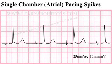 pacemaker chambre single chamber pacemaker vertrauen missbrauchen