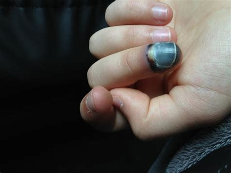 langsam schwarzer geschwollener finger arzt entzuendung
