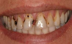How To Detect Tooth Decay - Signs & Symptoms Of Tooth ...