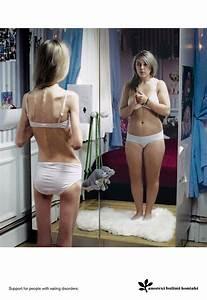 Fettleibigkeit definition