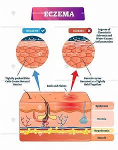 Eczema Biological Vector Illustration Skin Layer Diagram