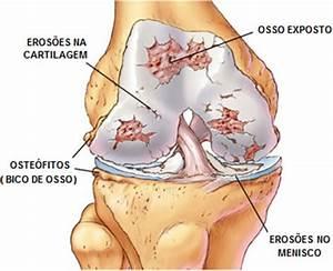 Artrite - causas, sintomaratamento