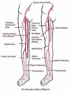 Pin On Pad  Asvd    Atherosclerosis  And Coronary Artery