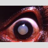 Cataract Surgery | 395 x 299 jpeg 23kB