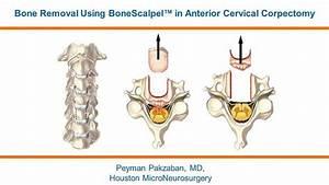 BoneScalpel | Dr. Pakzaban | Anterior Cervical Corpectomy ...