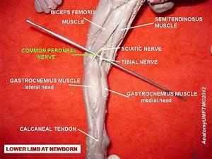 Peroneal Nerve Paralysis